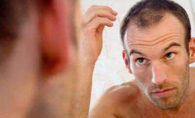 Hairstyles For Balding Men-1318