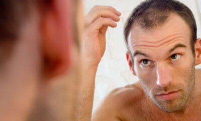 Hairstyles For Balding Men-1318